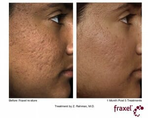 Fraxel Acne Traitement