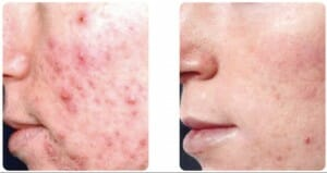 Reduction des cicatrices d'acne