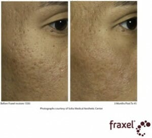 Fraxel traitement d'acne