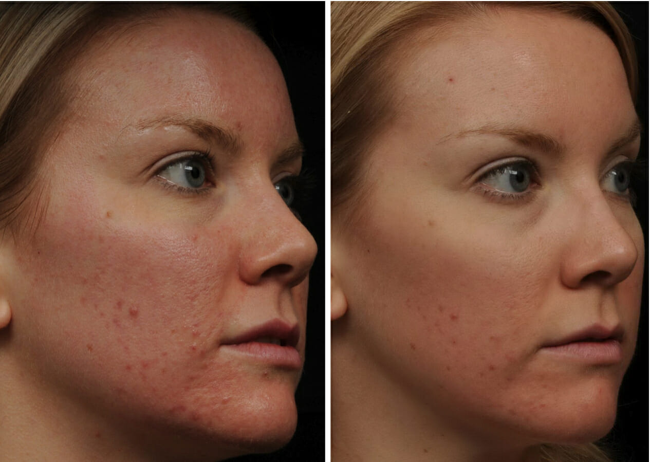 Fraxel Acne Scars Before And After | Car Interior Design