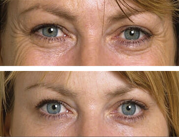 Eye Treatments At Peau Medical Spa