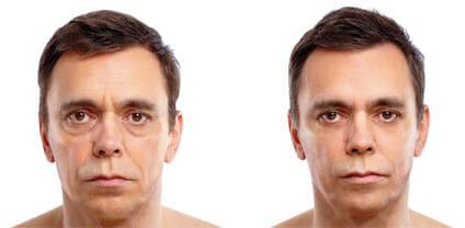 how to get iodine off skin around eyes