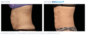 Female Abdo Treatment with Emsculpt